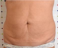 Vetophoping Huidverslapping behandeling voor na Onda