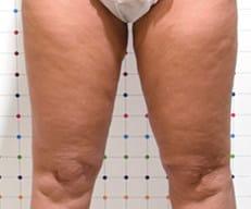 cellulite behandeling voor na Onda