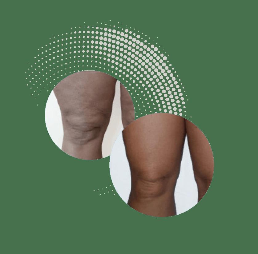 Onda Coolwaves Figuurcorrectie Body contouring