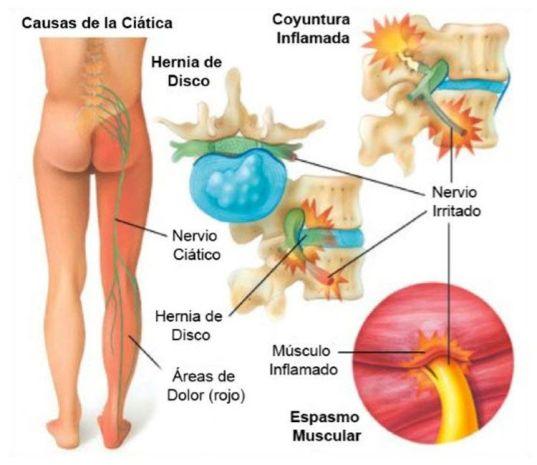 Mapa del nervio ciatico zona inferior