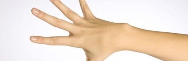 Чем лечить бородавку на пальце: как вывести, убрать ...