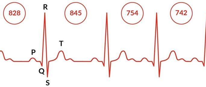 Seriál HRV (variabilita pulzu)