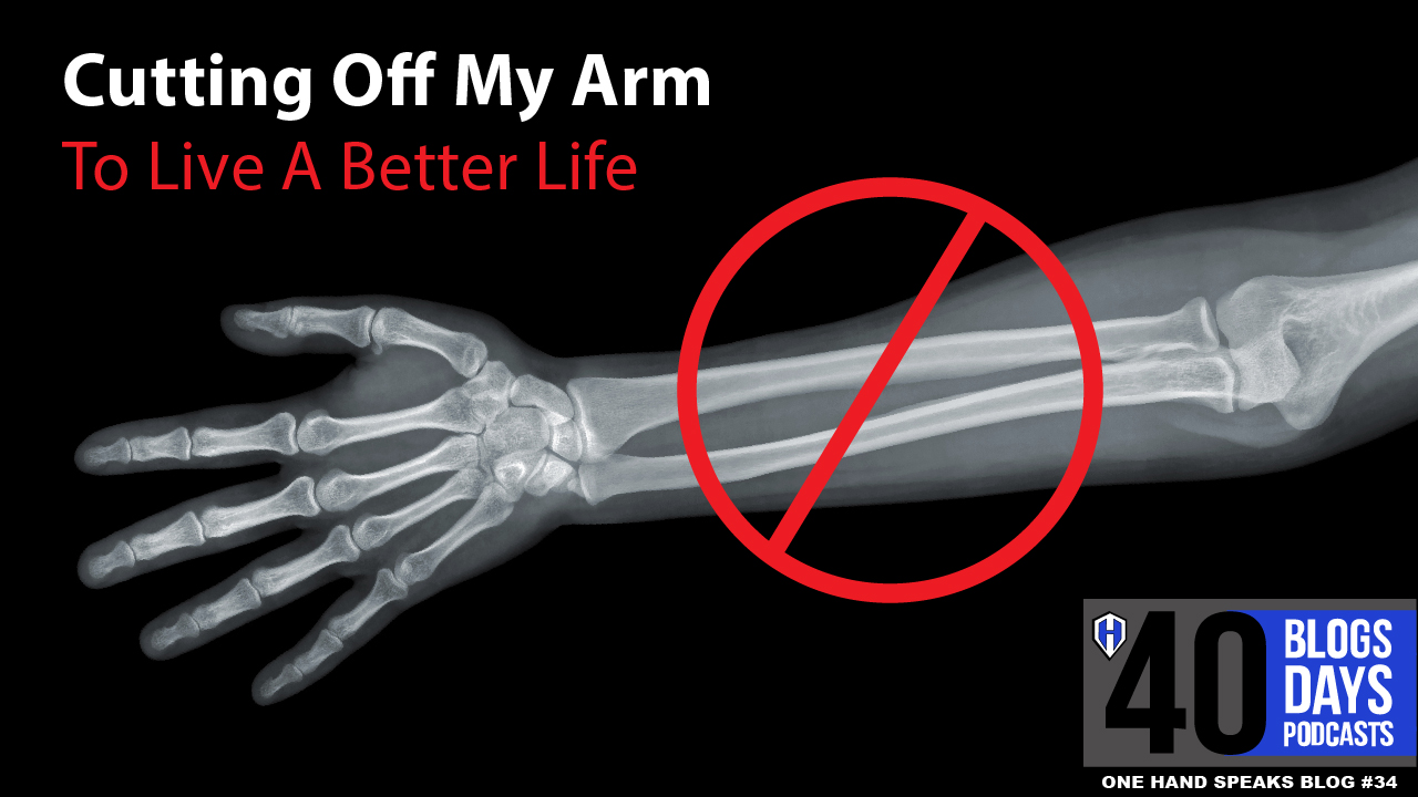 Amputation, Limb Deficient, X-ray, Arm, Hand, Life With One Hand, Wounded Warrior