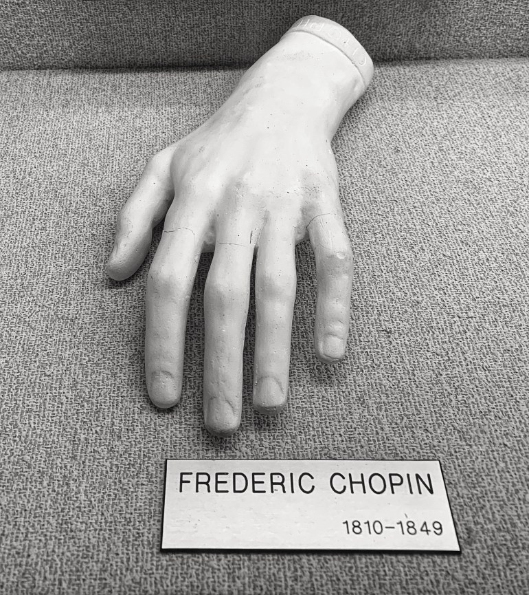 Frederic Chopin:  The Hand Collection at Baylor Medical Center in Dallas, Texas