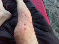 Crash mit Knieschwellung, nach 4 Tagen ohne Pause schon viel besser