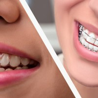 The Zirconia Ceramic: Strengths and Weaknesses