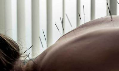 3728-acupuncture_female_1296x728-header