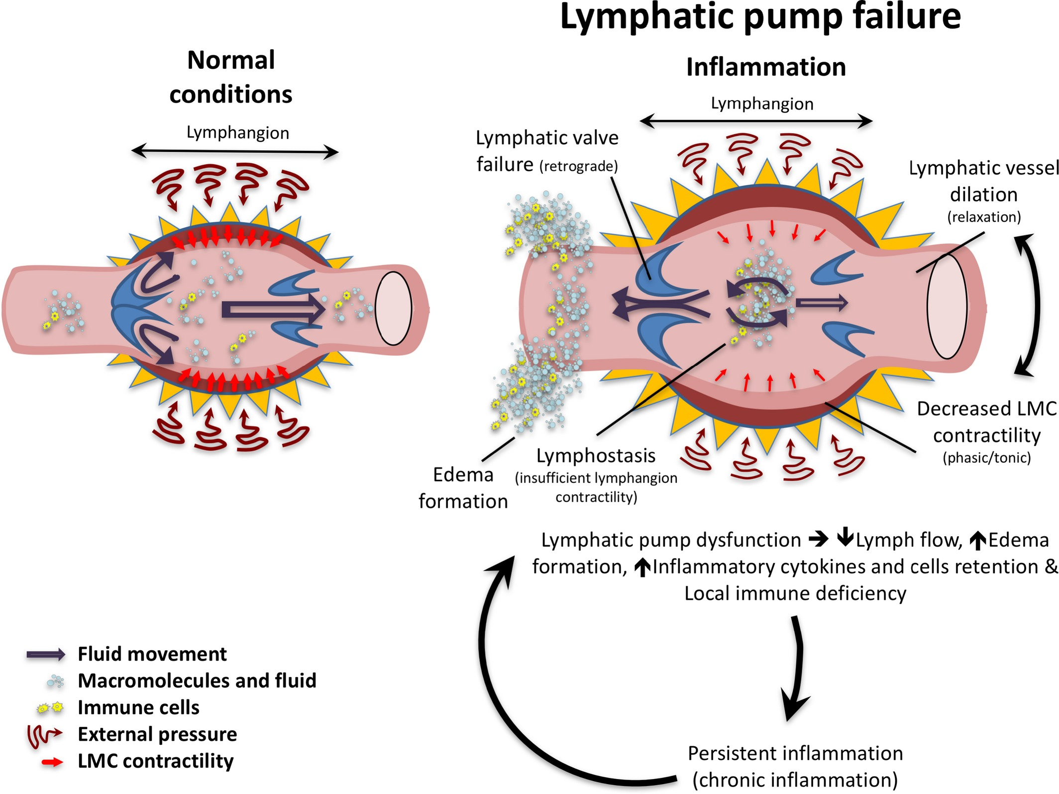 Anatomy And Roles Of Lymphatics In Inflammatory Diseases