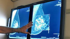 Mammograms may be missing some breast cancers, study shows