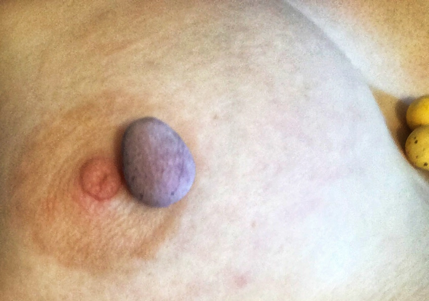 Photo of a boob, with a purple mini egg sitting next to my nipple and two yellow mini eggs nestling in my cleavage.