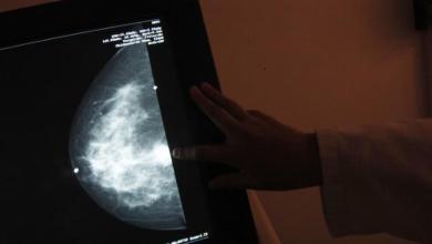 الكثير من النوم قد يسبب الوفاة للمصابات بسرطان الثدي