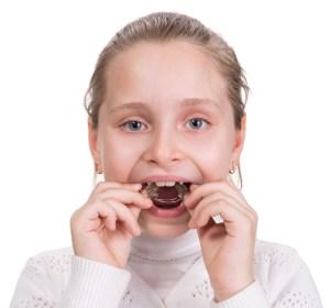 下顎の成長が弱いことによる上顎前突