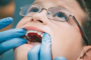 小学生の歯並びの特徴と、歯列矯正を始める最適な時期