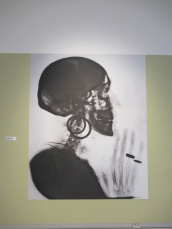 OPPENHEIM Röntgenfoto uitvergroot tegen wand tento MO zomer 2021