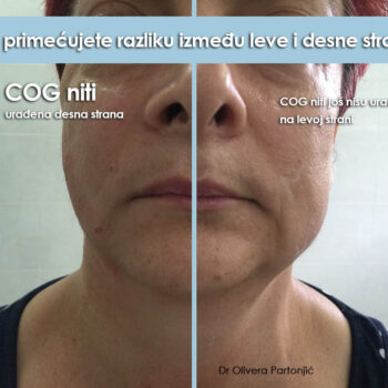 face lifting Cog threads