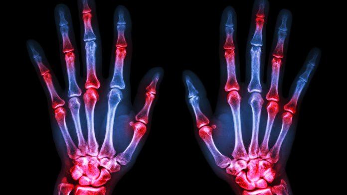 causas-da-artrite
