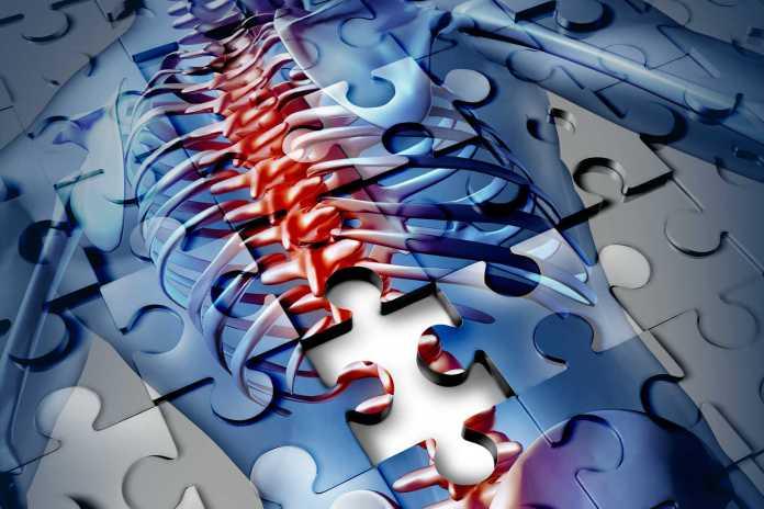 Prevenção à osteoporose