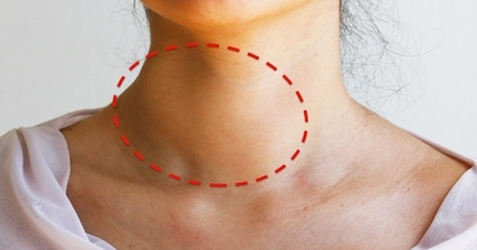 Nódulo no pescoço