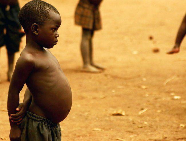 Doença de Kwashiorkor