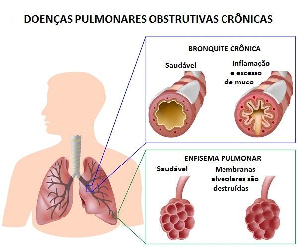 Causas da bronquite
