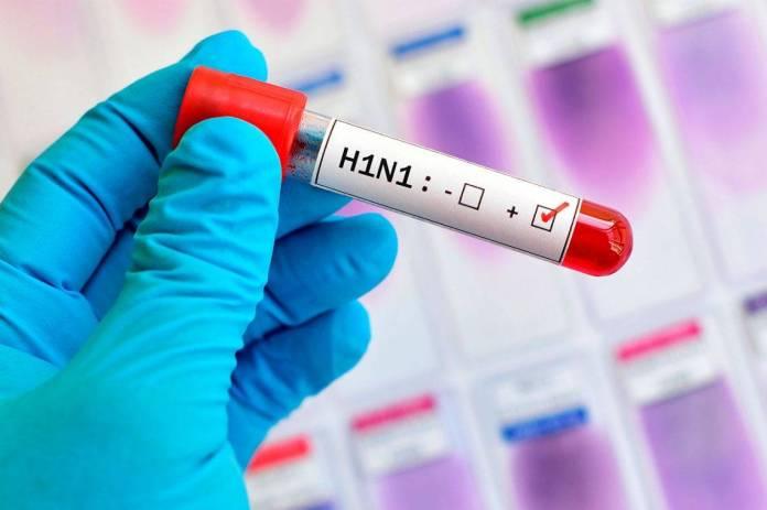 Vírus H1N1