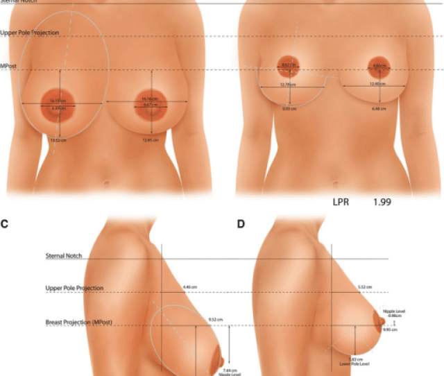 Breast Shape Before A C And After B D Vertical