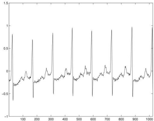 Related Keywords Amp Suggestions For Ecg Waveform