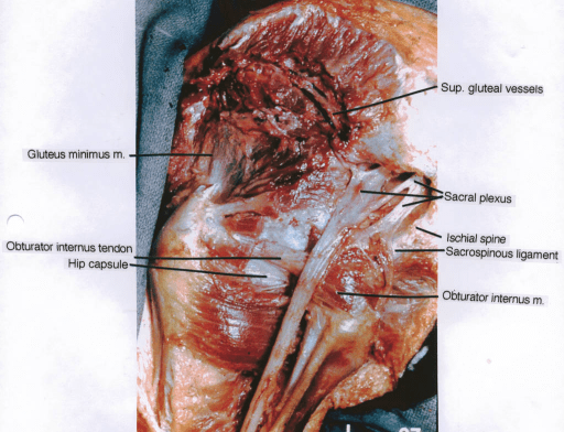 Vessels Near Sacrospinous Ligament