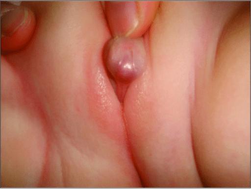 spot Female g
