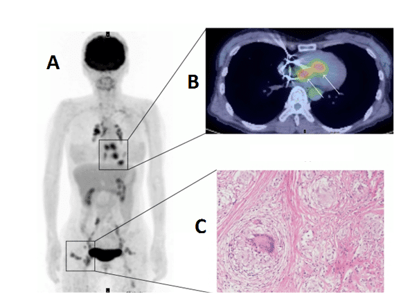 Figure 12 shows the PET Imaging of cardiac sarcoidosis