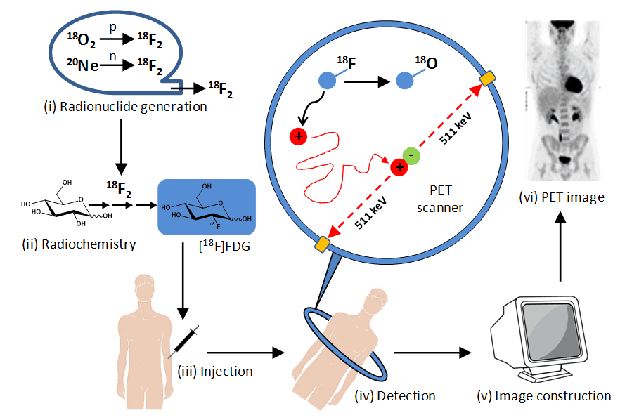 Figure 2. Stages in PET imaging of the human body.