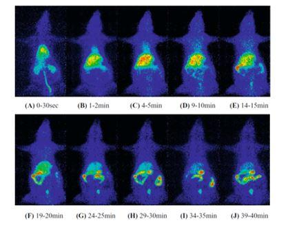 Figure 9 shows whole-body imaging of carbon-11 labelled diphenylhydantoin injected into tail vein of rat