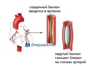 Полное описание баллонной ангиопластики: когда, зачем и как ее делают
