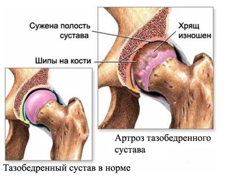 Замена эндопротеза тазобедренного сустава