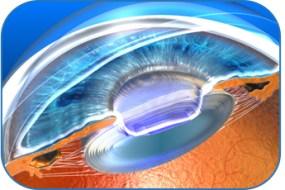 Deroulement-de-la-chirurgie-de-la-cataracte