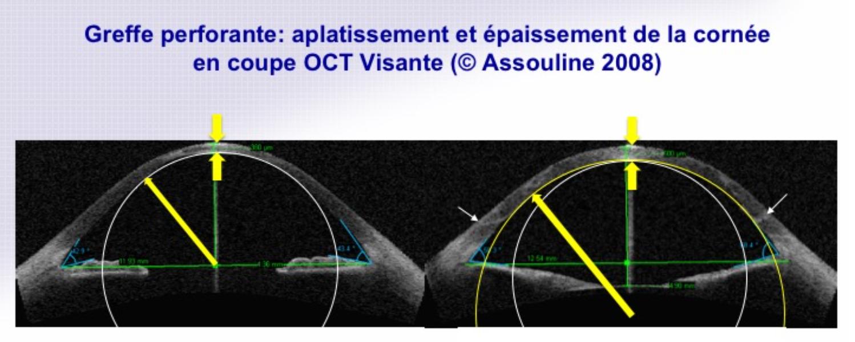 Greffe de cornée perforante (Kératoplastie Transfixiante)