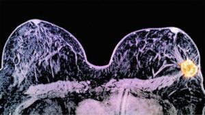 4 em cada 10 pacientes começam a tratar câncer só após prazo legal 7