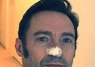 Wolverine no cinema, Hugh Jackman trata novo câncer de pele 5