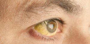 16012018174333-300x146 Holanda confirma caso de febre amarela contraída por um homem no Brasil