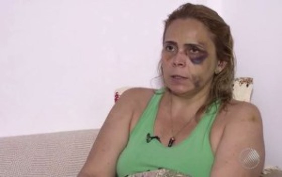 agressao-1 Ex-namorada denuncia agressões de humorista