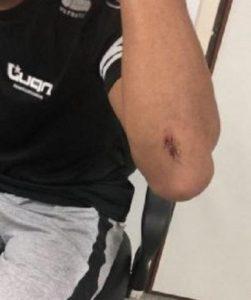 1526232278543-motorista-agredido-1-389x465-251x300 Motorista de Luan Estilizado é agredido por funcionários de casa de eventos na PB