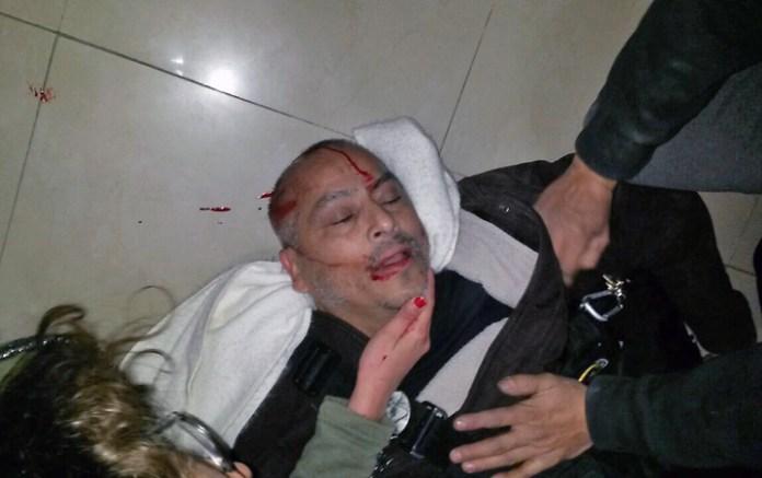 Manifestantes intentaron forzar la puerta de la residencia y la policía reprimió hiriendo a un reportero gráfico
