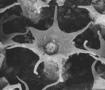 tuberculo-rostanga