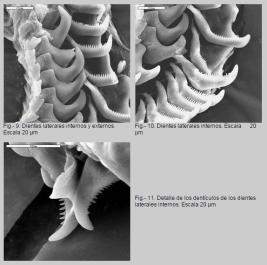 Radula de Diaphorodoris papillata by Luis Sánchez-Tocino