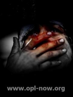 المرصد الأورومتوسطي:الموت يهدد مصير آلاف المعتقلين في سجون نظام الأسد
