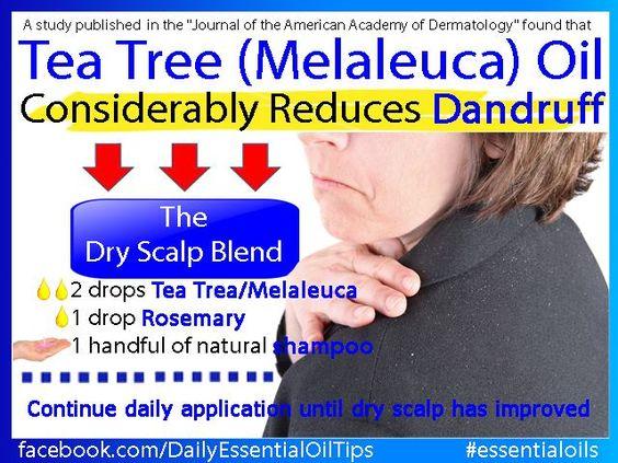 dandruff tea tree oil essentialoilpro.net