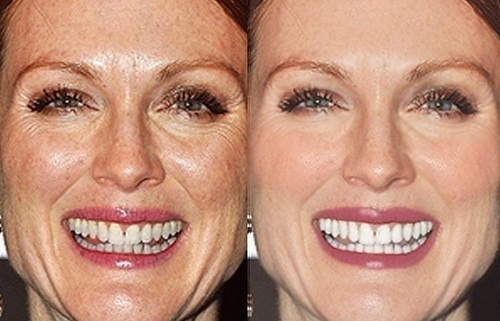 Julianne Moore glows in every photo, even the pre-edited ones.