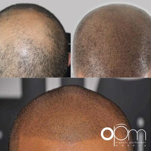 Organic scalp pigmentation is safe and convenient.
