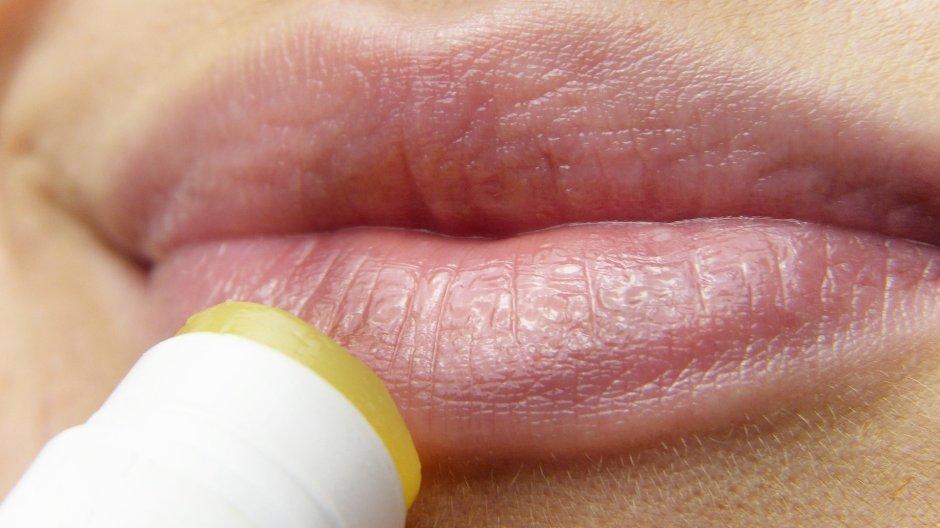 addicted to lip balm