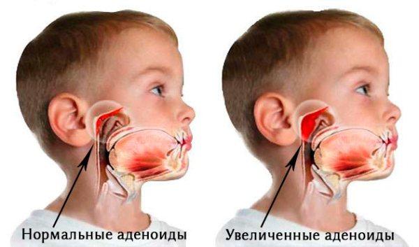 Мазь Левомеколь в нос ребенку и взрослому можно ли мазать